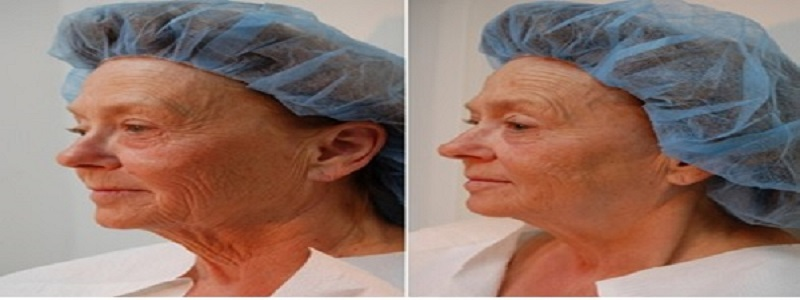 Understanding Lunch Time Facelift!